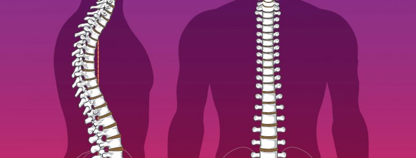 normal spinal structure